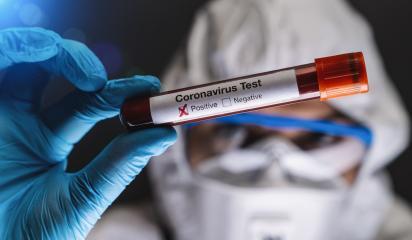 2019-nCoV Coronavirus Test. Positive Blood Sample in Scientist Hand. Respiratory Syndrome. Coronavirus outbreaking- Stock Photo or Stock Video of rcfotostock | RC-Photo-Stock