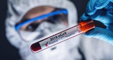 Coronavirus COVID 19 nCov Outbreak. New Corona Virus Blood Test Tube from Patient. Positive Case of Korona Virus Europe, Italy, Wuhan, China. Epidemic and Pandemic infection- Stock Photo or Stock Video of rcfotostock | RC-Photo-Stock