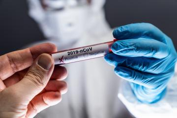 Coronavirus Test 2019-nCoV Hand give Positive Blood test to a Scientist. Corona virus outbreaking. Epidemic virus Respiratory Syndrome. China- Stock Photo or Stock Video of rcfotostock | RC-Photo-Stock