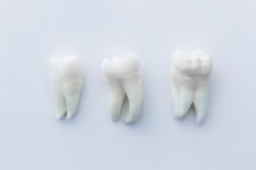 dentist teeths wisdom tooths  : Stock Photo or Stock Video Download rcfotostock photos, images and assets rcfotostock | RC-Photo-Stock.: