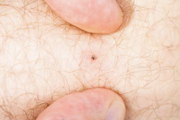 Encephalitis tick on human skin : Stock Photo or Stock Video Download rcfotostock photos, images and assets rcfotostock | RC-Photo-Stock.: