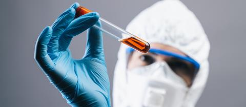 female medical lab worker holding 2019-nCoV Coronavirus blood Test tube. Positive Blood Sample in Scientist Hand. Coronavirus outbreaking, banner size : Stock Photo or Stock Video Download rcfotostock photos, images and assets rcfotostock   RC-Photo-Stock.:
