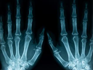 x-ray closeup of hands- Stock Photo or Stock Video of rcfotostock   RC-Photo-Stock