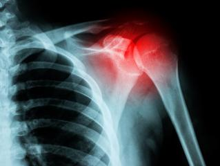 X-ray film of shoulder fracture- Stock Photo or Stock Video of rcfotostock | RC-Photo-Stock