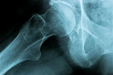 X-Ray Image of a Human Chest hip joint bone - Stock Photo or Stock Video of rcfotostock | RC-Photo-Stock