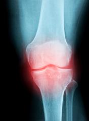 X-Ray Image of a Human knee joint for a medical diagnosis- Stock Photo or Stock Video of rcfotostock | RC-Photo-Stock