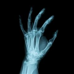 x-ray Image of a human left hand : Stock Photo or Stock Video Download rcfotostock photos, images and assets rcfotostock | RC-Photo-Stock.: