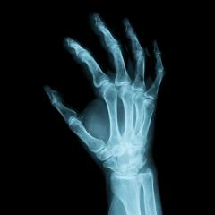 x-ray Image of a human right hand for a medical diagnosis- Stock Photo or Stock Video of rcfotostock | RC-Photo-Stock