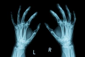 x-ray Image of both human hands- Stock Photo or Stock Video of rcfotostock | RC-Photo-Stock