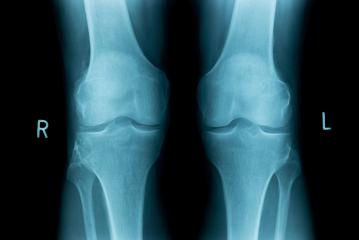x-ray image of both human knee- Stock Photo or Stock Video of rcfotostock | RC-Photo-Stock