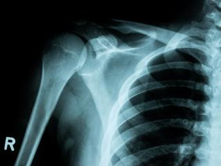 X-ray image of shoulder fracture for a medical diagnosis- Stock Photo or Stock Video of rcfotostock | RC-Photo-Stock