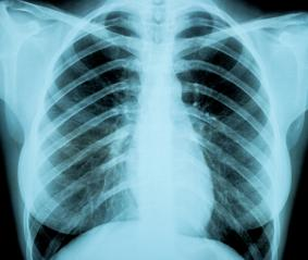X-Ray Image Of Woman Chest for a medical diagnosis : Stock Photo or Stock Video Download rcfotostock photos, images and assets rcfotostock | RC-Photo-Stock.: