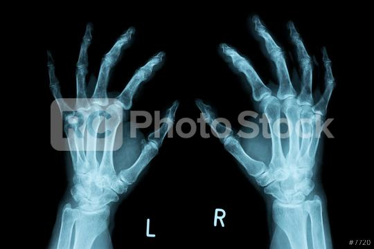 x-ray Image of both human hands  : Stock Photo or Stock Video Download rcfotostock photos, images and assets rcfotostock   RC-Photo-Stock.:
