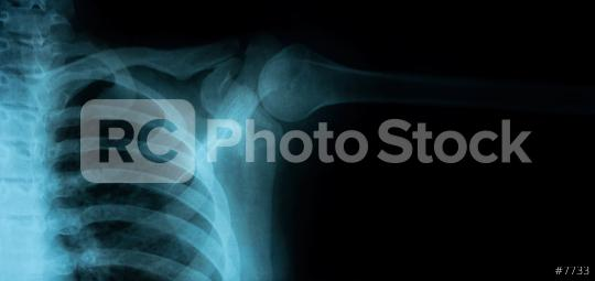 X-Ray Image of Healthy Chest  : Stock Photo or Stock Video Download rcfotostock photos, images and assets rcfotostock   RC-Photo-Stock.: