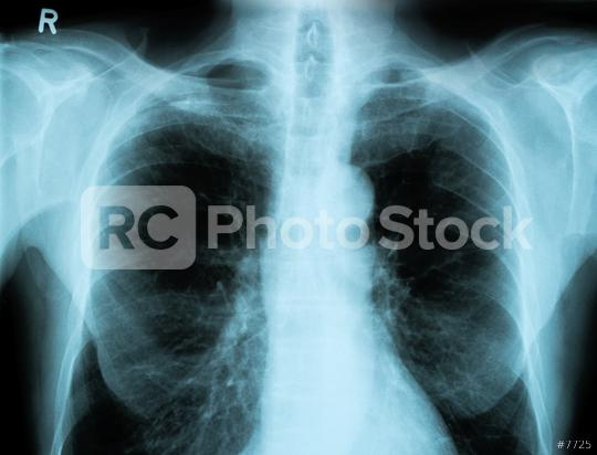 X-Ray Image Of Human Chest  : Stock Photo or Stock Video Download rcfotostock photos, images and assets rcfotostock   RC-Photo-Stock.: